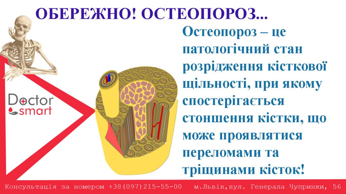 остеопороз1-1200x675.jpg